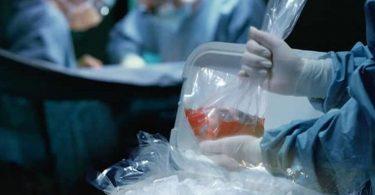 Donación de órganos automático